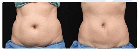 coolsculpting-phoenix-paradise-valley-scottsdale-az
