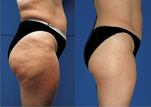 cellulite-treatment-phoenix-paradise-valley-scottsdale-arizona